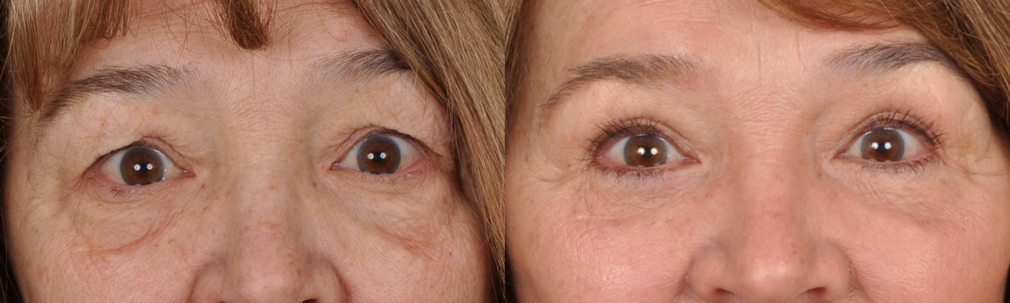 Photo Gallery Blepharoplasty Edmon P Khoury Md