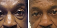 Blepharoplasty 01 / Lower Transconjunctival Blepharoplasty with Skin Pinch