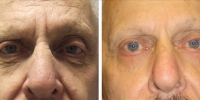 Blepharoplasty 02 / Lower Skin Flap-Only Blepharoplasty