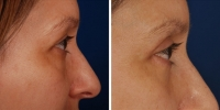 Blepharoplasty 15 / Upper and Lower Blepharoplasty