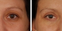 Blepharoplasty 16 / Upper and Lower Blepharoplasty