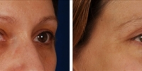 Blepharoplasty 17 / Upper and Lower Blepharoplasty