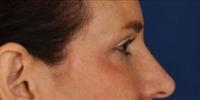 Blepharoplasty 19 / Upper Blepharoplasty