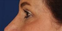 Blepharoplasty 21 / Upper Blepharoplasty