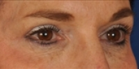 Blepharoplasty 23 / Upper Blepharoplasty