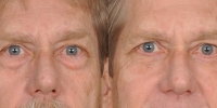 Lower Eyelid Lift Blepharoplasty Before and After Dr Edmon Khoury 100