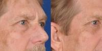 Lower Eyelid Lift Blepharoplasty Before and After Dr Edmon Khoury 101