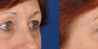 Lower Eyelid Lift Blepharoplasty Before and After Dr Edmon Khoury 103
