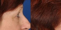 Lower Eyelid Lift Blepharoplasty Before and After Dr Edmon Khoury 104