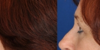 Lower Eyelid Lift Blepharoplasty Before and After Dr Edmon Khoury 105