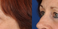 Lower Eyelid Lift Blepharoplasty Before and After Dr Edmon Khoury 106