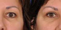 Upper Eyelid Lift Blepharoplasty Before and After Dr Edmon Khoury 100