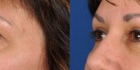 Upper Eyelid Lift Blepharoplasty Before and After Dr Edmon Khoury 101