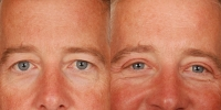 Upper Eyelid Lift Blepharoplasty Before and After Dr Edmon Khoury 102