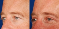 Upper Eyelid Lift Blepharoplasty Before and After Dr Edmon Khoury 103