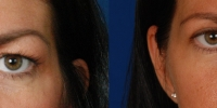 Upper Eyelid Lift Blepharoplasty Before and After Dr Edmon Khoury 104