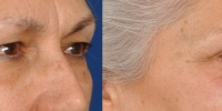 Upper and Lower Eyelid Lift  Blepharoplasty Before and After Dr Edmon Khoury 103