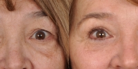 Upper and Lower Eyelid Lift  Blepharoplasty Before and After Dr Edmon Khoury 106