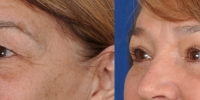 Upper and Lower Eyelid Lift  Blepharoplasty Before and After Dr Edmon Khoury 107