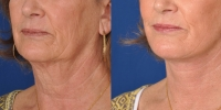 dr-khoury-facelifts-23