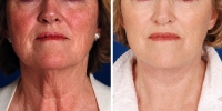 Laser Assisted Facelifts (SmartLifting) 02 / Dr. Khoury's laser assisted facelift patient before and after.
