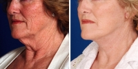Laser Assisted Facelifts (SmartLifting) 03 / Dr. Khoury's laser assisted facelift patient before and after.