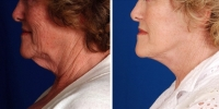 Laser Assisted Facelifts (SmartLifting) 04 /Dr. Khoury's laser assisted facelift patient before and after.