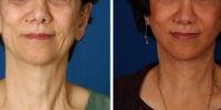Laser Assisted Facelifts (SmartLifting) 06 / Only 7 days after SmartLifting(tm) procedure