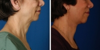 Laser Assisted Facelifts (SmartLifting) 07 / Only 7 days after SmartLifting(tm) procedure