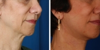 Laser Assisted Facelifts (SmartLifting) 08 / Only 7 days after SmartLifting(tm) procedure