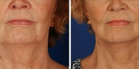Laser Assisted Facelifts (SmartLifting) 10