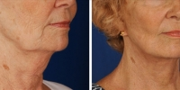 Laser Assisted Facelifts (SmartLifting) 11