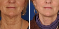 Laser Assisted Facelifts (SmartLifting) 12