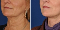 Laser Assisted Facelifts (SmartLifting) 13