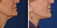 Laser Assisted Facelifts (SmartLifting) 14
