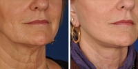 Laser Assisted Facelifts (SmartLifting) 15