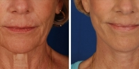 Laser Assisted Facelifts (SmartLifting) 16