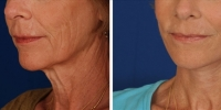 Laser Assisted Facelifts (SmartLifting) 17