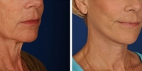 Laser Assisted Facelifts (SmartLifting) 18