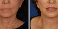 Laser Assisted Facelifts (SmartLifting) 19