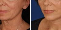 Laser Assisted Facelifts (SmartLifting) 20