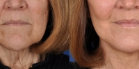 Lower Facelift Necklift Before and After Dr Edmon Khoury 100