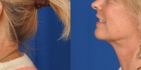 Lower Facelift Necklift Before and After Dr Edmon Khoury 103