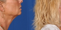 Lower Facelift Necklift Before and After Dr Edmon Khoury 104