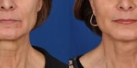 Lower Facelift Necklift Before and After Dr Edmon Khoury 107