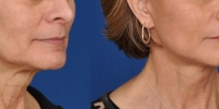 Lower Facelift Necklift Before and After Dr Edmon Khoury 109