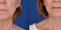 Lower Facelift Necklift Before and After Dr Edmon Khoury 112