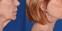 Lower Facelift Necklift Before and After Dr Edmon Khoury 113