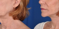 Lower Facelift Necklift Before and After Dr Edmon Khoury 115