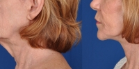 Lower Facelift Necklift Before and After Dr Edmon Khoury 116